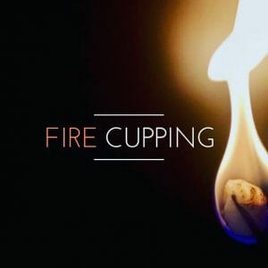 Fire Cupping FSW